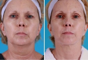 Mini Facelift | Atlanta | Patient 2 | Before and After Photos | Front View | Dr. Marcia Byrd