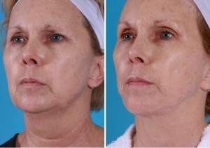 Mini Facelift | Atlanta | Patient 2 | Before and After Photos | Oblique View | Dr. Marcia Byrd