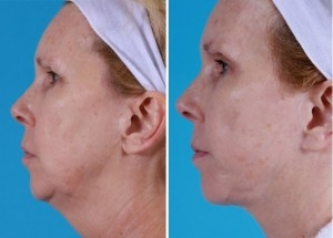 Mini Facelift | Atlanta | Patient 2 | Before and After Photos | Side View | Dr. Marcia Byrd