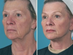 Mini Facelift | Atlanta | Patient 3 | Before and After Photos | Oblique View | Dr. Marcia Byrd