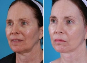 Mini Facelift | Atlanta | Patient 4 | Before and After Photos | Oblique View | Dr. Marcia Byrd