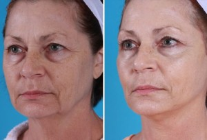 Mini Facelift | Atlanta | Patient 5 | Before and After Photos | Oblique View | Dr. Marcia Byrd