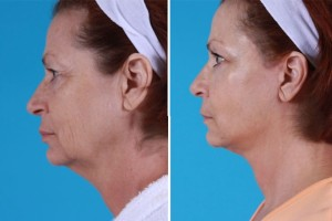Mini Facelift | Atlanta | Patient 5 | Before and After Photos | FSide View | Dr. Marcia Byrd