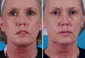 Mini Facelift | Atlanta | Patient 6 | Before and After Photos | Front View | Dr. Marcia Byrd