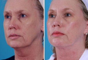 Mini Facelift | Atlanta | Patient 6 | Before and After Photos | Olique View | Dr. Marcia Byrd
