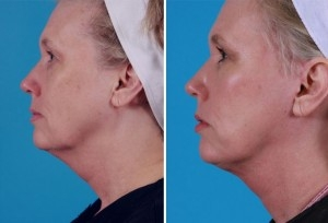 Mini Facelift | Atlanta | Patient 3 | Before and After Photos | Side View | Dr. Marcia Byrd