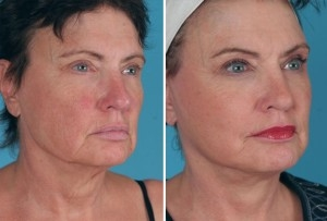 Mini Facelift | Atlanta | Patient 8 | Before and After Photos | Oblique View | Dr. Marcia Byrd
