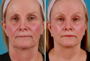 Mini Facelift | Atlanta | Patient 9 | Before and After Photos | Front View | Dr. Marcia Byrd