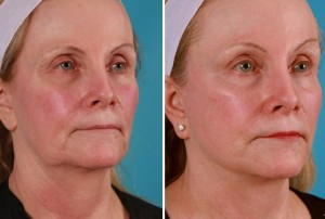 Mini Facelift | Atlanta | Patient 9 | Before and After Photos | Oblique View | Dr. Marcia Byrd