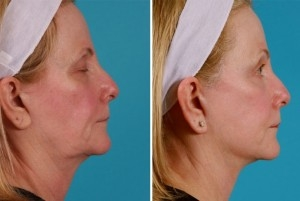 Mini Facelift | Atlanta | Patient 9 | Before and After Photos | Side View | Dr. Marcia Byrd