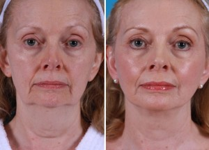 Mini Facelift | Atlanta | Patient 10 | Before and After Photos | Front View | Dr. Marcia Byrd