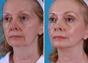 Mini Facelift | Atlanta | Patient 10 | Before and After Photos | Oblique View | Dr. Marcia Byrd