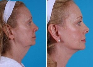 Mini Facelift | Atlanta | Patient 10 | Before and After Photos | Side View | Dr. Marcia Byrd