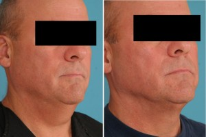 Neck Liposuction | Atlanta | Patient 1 | Before and After Photos | Oblique View | Dr. Marcia Byrd