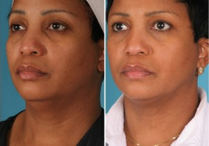 Neck Liposuction | Atlanta | Patient 2 | Before and After Photos | Oblique View | Dr. Marcia Byrd
