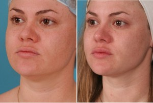 Neck Liposuction | Atlanta | Patient 3 | Before and After Photos | Oblique View | Dr. Marcia Byrd