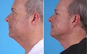 Neck Liposuction | Atlanta | Patient 4 | Before and After Photos | Side View | Dr. Marcia Byrd
