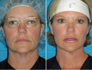 Neck Liposuction | Atlanta | Patient 5 | Before and After Photos | Front View | Dr. Marcia Byrd