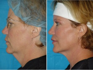 Neck Liposuction | Atlanta | Patient 5 | Before and After Photos | Oblique View | Dr. Marcia Byrd