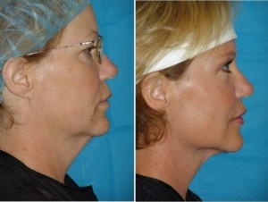 Neck Liposuction | Atlanta | Patient 5 | Before and After Photos | Side View –| Dr. Marcia Byrd