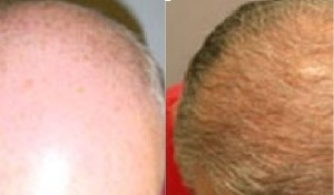 NeoGraft Hair Restoration | Atlanta | Before and After Photos | Dr. Marcia Photos