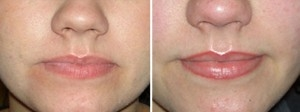 Permanent Makeup | Atlanta | Before and After Photos | Dr. Marcia Byrd