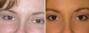 Permanent Makeup| Atlanta | Before and After Photos | Dr. Marcia Byrd