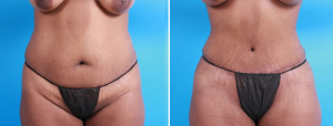 Tummy Tuck | Atlanta | Patient 1 | Before and After Photos | Front View | Dr. Marcia Byrd.jpg