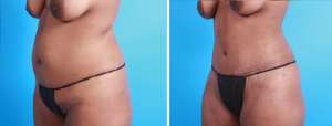 Tummy Tuck | Atlanta | Patient 1 | Before and After Photos | Oblique View | Dr. Marcia Byrd