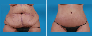 Tummy Tuck | Atlanta | Patient 2 | Before and After Photos | Front View | Dr. Marcia Byrd
