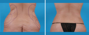 Tummy Tuck | Atlanta | Patient 2 | Before and After Photos | Rear View | Dr. Marcia Byrd