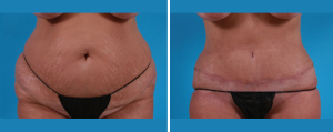 Tummy Tuck | Atlanta | Patient 4 | Before and After Photos | Front View | Dr. Marcia Byrd