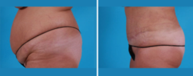 Tummy Tuck | Atlanta | Patient 4 | Before and After Photos | Side View | Dr. Marcia Byrd.jpg