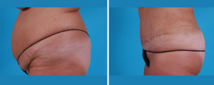 Tummy Tuck | Atlanta | Patient 4 | Before and After Photos | Side View | Dr. Marcia Byrd