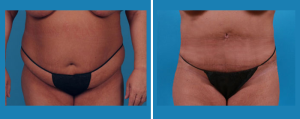 Tummy Tuck | Patient 5 | Front View | Dr. Marcia Byrd