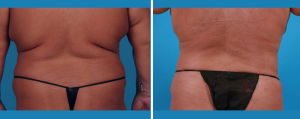 Tummy Tuck | Atlanta | Patient 5 | Before and After Photos | Rear View | Dr. Marcia Byrd