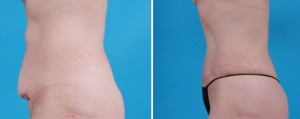 Tummy Tuck | Atlanta | Patient 6 | Before and After Photos | Side View | Dr. Marcia Byrd