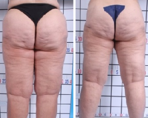 Water Jet-Assisted Liposuction | Before and After Photos | Atlanta | Dr. Marcia Byrd