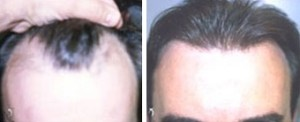 Neograft Patient | Atlanta | Before and After Photos | Dr. Marcia Byrd