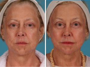 Portrait Plasma | Atlanta | Patient 1 | Before and After Photos | Dr. Marcia Byrd