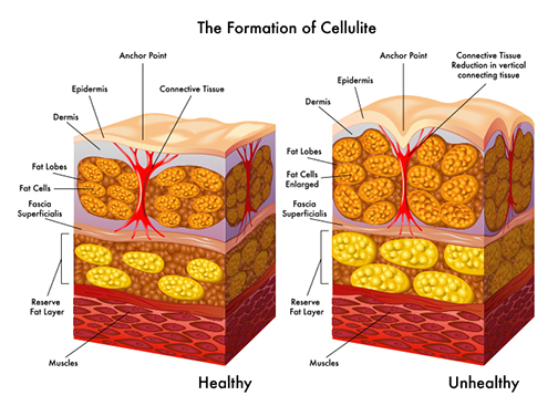 illustraion showing the formation of cellulite | Byrd Aesthetic & Anti-Aging Center