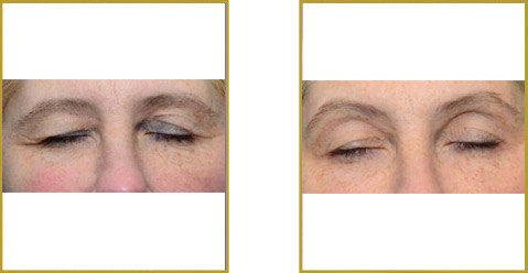 ThermiSmooth Eyelid Before and After