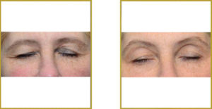 THERMIsmooth, facial wrinkle reduction, Atlanta