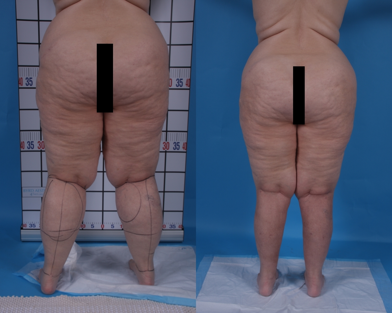 Lipedema before and after