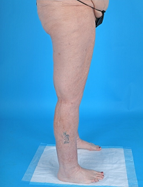 Lipedema surgery before and after