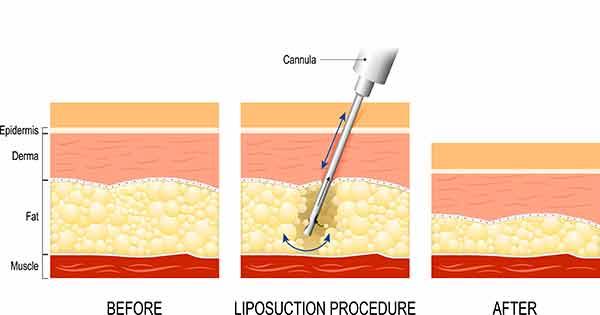 Lipedema Surgery