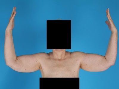 Lipedema arms
