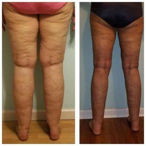 Lipedema liposuction surgery